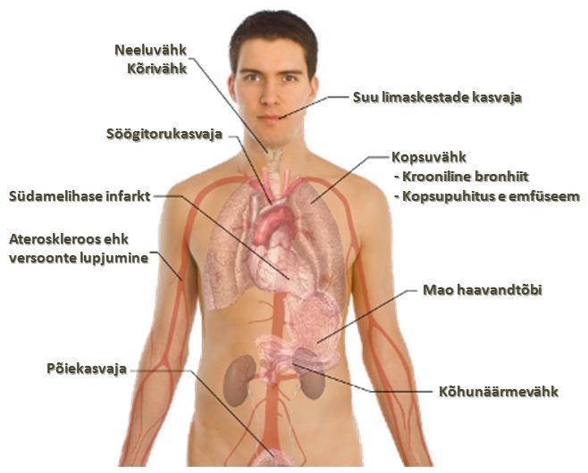 Tubakasuits on kantserogeenne (vähkitekitav)