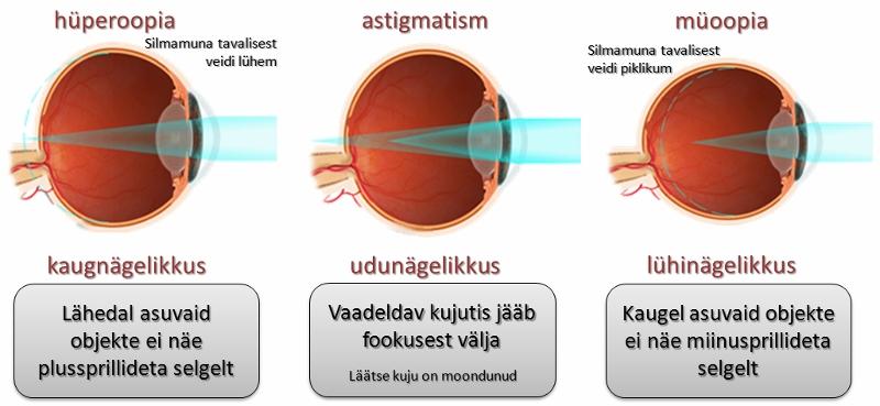 Silmahaigused