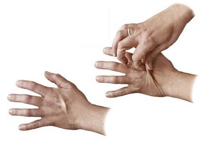 Vähese siserõhuga naharakud ei omanda koheselt esialgset kuju,  naha elastsus vananedes väheneb.